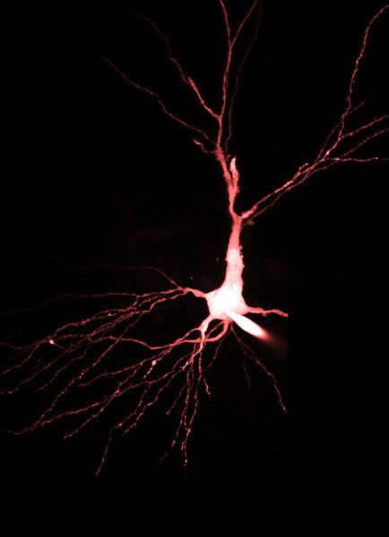 Hippocampus CA3 pyramidal neuron; imaged with InSight® DS+™.
